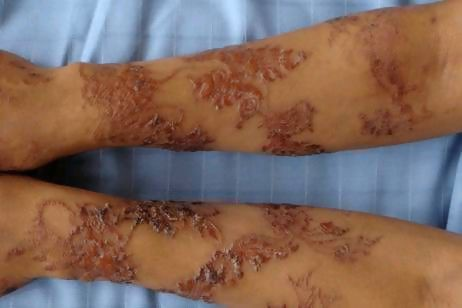 temporary tattoos may put you at risk mz mahogany chicmz